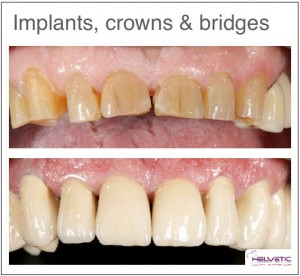 Dental implant cost Helvetic Clinics