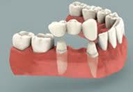 bridge-sur-implants