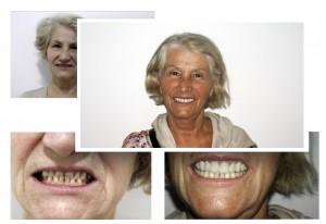 cosemtic-dentistry